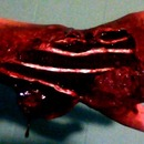 Mauled Hand