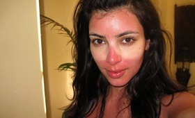 Beauty Remorse: Face Sunburn