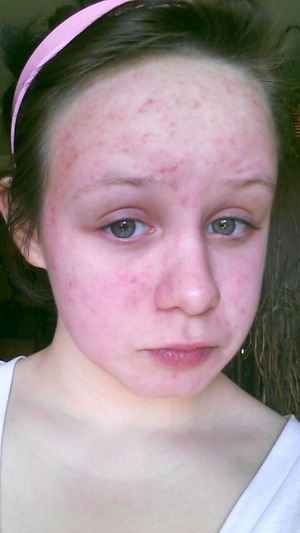 How To Soothe A Full Face Allergic Reaction Beautylish