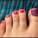 Purple toe nails