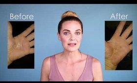 How to Treat Eczema with Glycelene