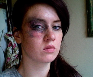 tutorial for this bruised look: http://astyleofyourown.blogspot.com/2011/10/black-eye-makeup.html