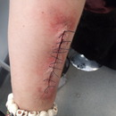 Stitched Up Arm