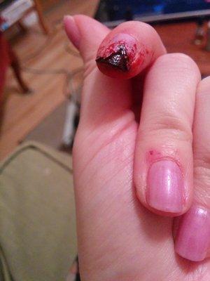 Fake nail and injury pack :) and nail polish, mostly because the fake nail was cheap and looked weird
