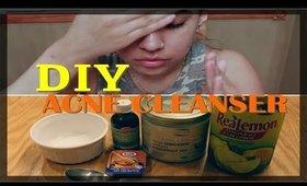 Quick DIY: Acne Cleanser | Carla Katrina