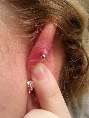 Sore Bump On The Back Of My Cartilage Piercing Beautylish