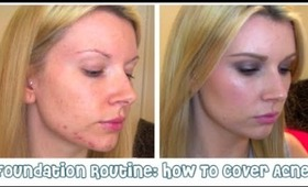 How To: Cover Acne | My Foundation Routine