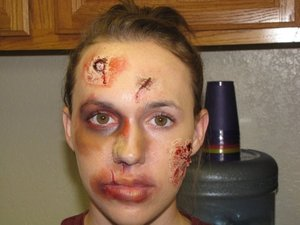 Beating Victim