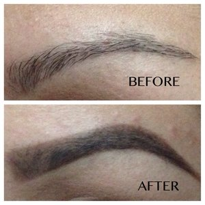 Brow before and after