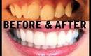 My TEETH (Before & After) Invisalign, Zoom Whitening, Veneers - AprilAthena7