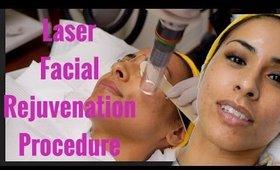 My First Laser Facial Rejuvenation Procedure - Rissrose2