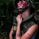 Bullet wound + cuts, bruises & pus sore