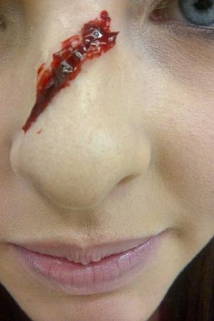 Broken/cut nose!