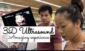 [VLOG] 3D ULTRASOUND Amazing Experience