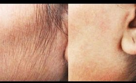 Remove Hair Permanenetly At Home_ Natural DIY _ (Face & Upper Lip) _  SuperWowStyle
