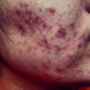 My Acne Before