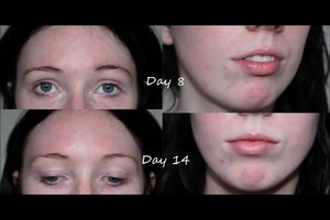 My second week update of using the Clinique Anti Blemish Solutions 3 Step System.