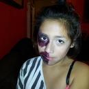 I Got Beat Up Look