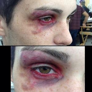 A black eye I did on my friend Connor. www.sarahblissmakeup.com