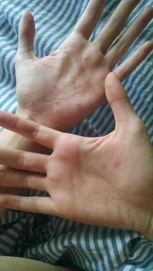Dyshidrotic eczema, help? | Beautylish
