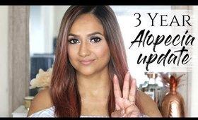 3 Year Alopecia Update