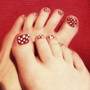 Polkadot Pedicure