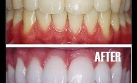 How to Whiten Teeth Naturally At Home Remedy--PhillyGirl1124 on YouTube!