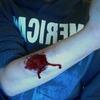 I Stabbed Myself