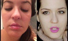 Herpes labiales: #Quiéretemás
