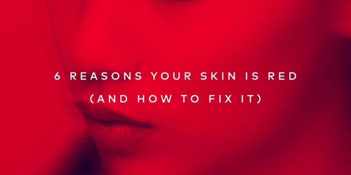 6 reasons your skin is red and how to fix it – learn more