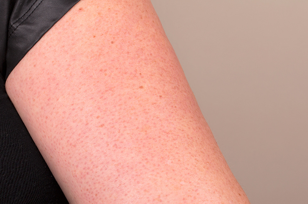 red bumps on upper arms