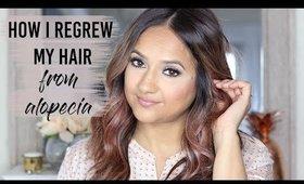 How I Regrew My Hair from Alopecia