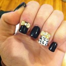 Bows and cheetah print nails