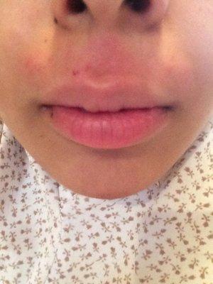 Upper Lip Wax Burn Beautylish