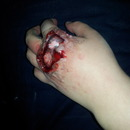 Knuckle Wound