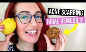 How To Remove Acne Scars NATURALLY At Home! Top 3 Acne Scarring Treatments