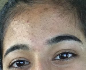 Acne Scars Dark Spots Beautylish